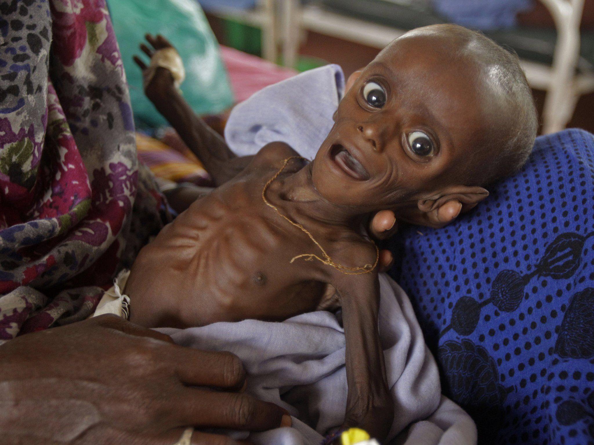 Die Hungerkatastrophe in der Sahelzone: Vor allem Kinder sind notleidend.