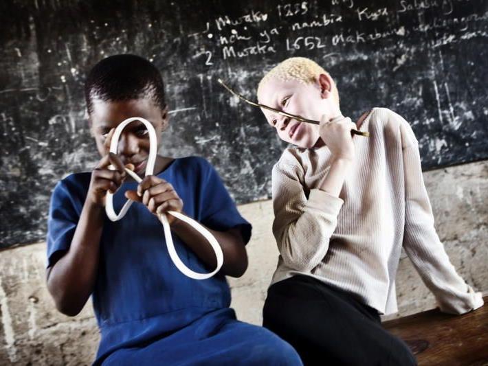 Symbolbild: Das Unicef-Foto des Jahres 2009 zeigt Selina, eine der rund 150.000 Albinos in Tanzania.