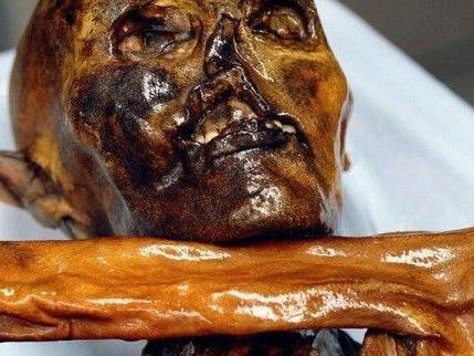 Die Darmflora von Ötzi ähnelt heute am ehesten der von ländlich lebenden, afrikanischen Kindern.