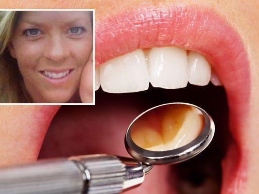 Zahnarzt feuert attraktive Assistentin: Gericht sieht keine Diskriminierung.