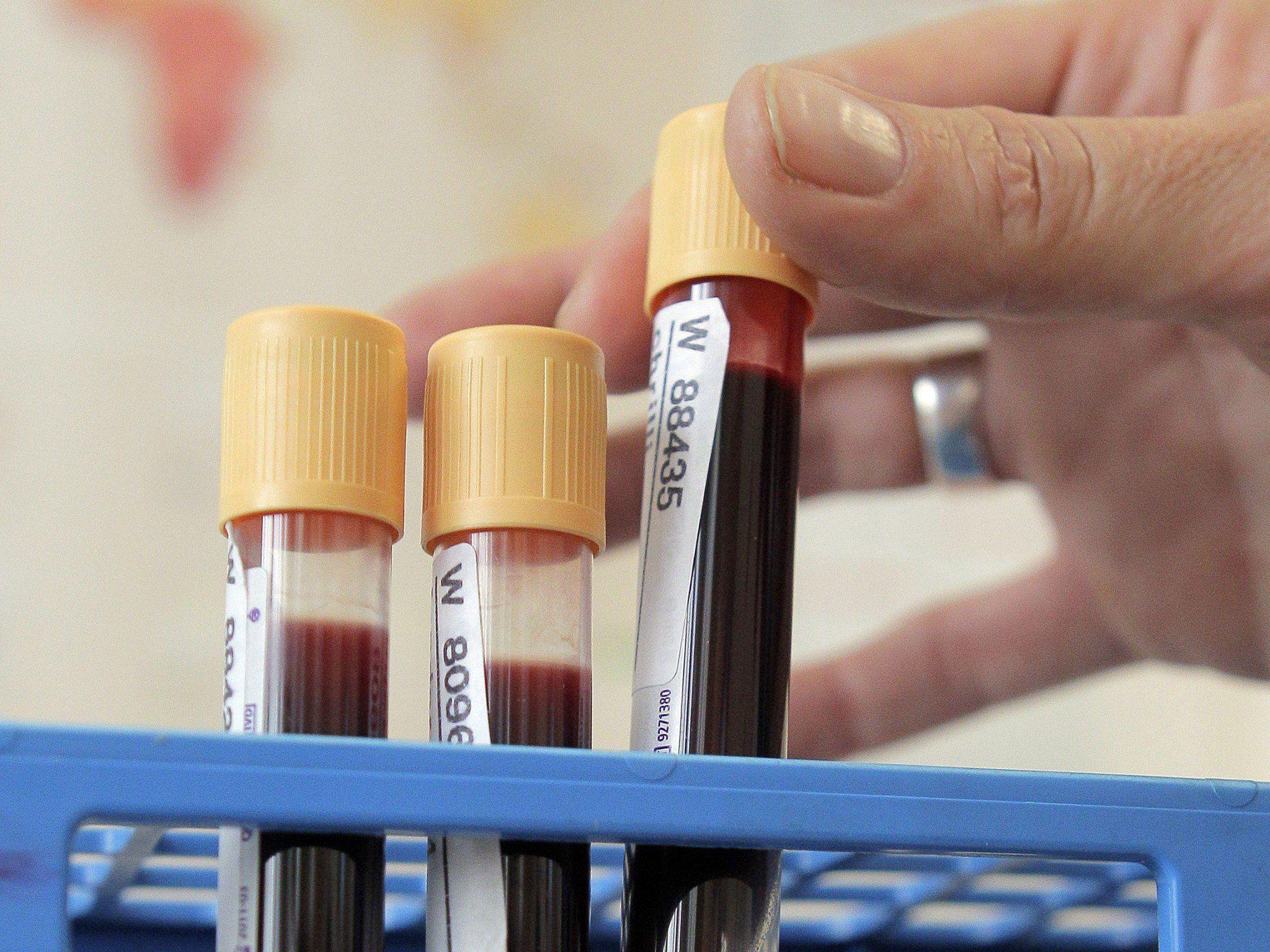Proteinmarker sollen Erkennung deutlich erleichtern.