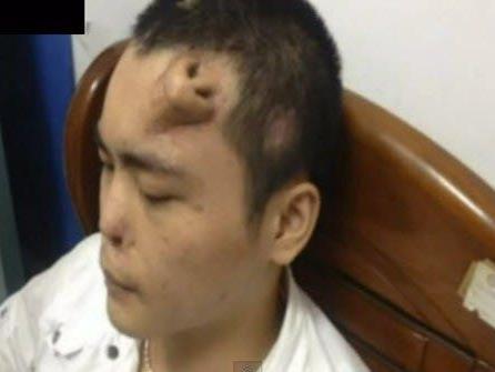 Auf der Stirn des Chinesen Xiaolian wurde eine neue Nase gezüchtet - die Transplantation an die richtige Stelle soll bald erfolgen.