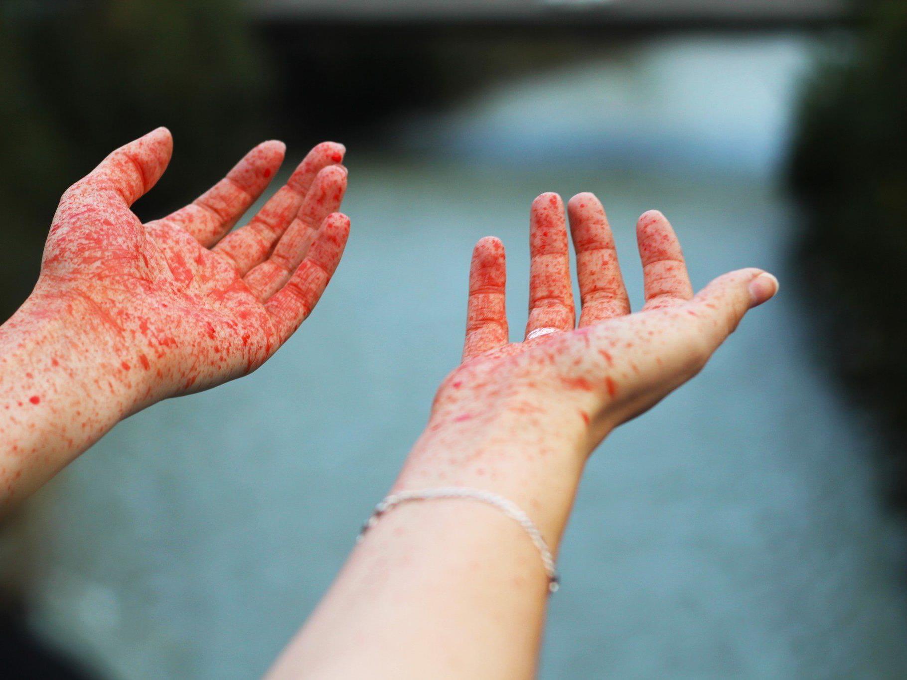 Das Burgfräulein mit Blut an den Händen.
