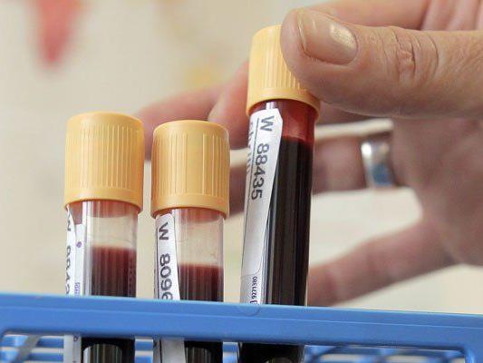 HIV-Infektionen in Vorarlberg haben zugenommen.