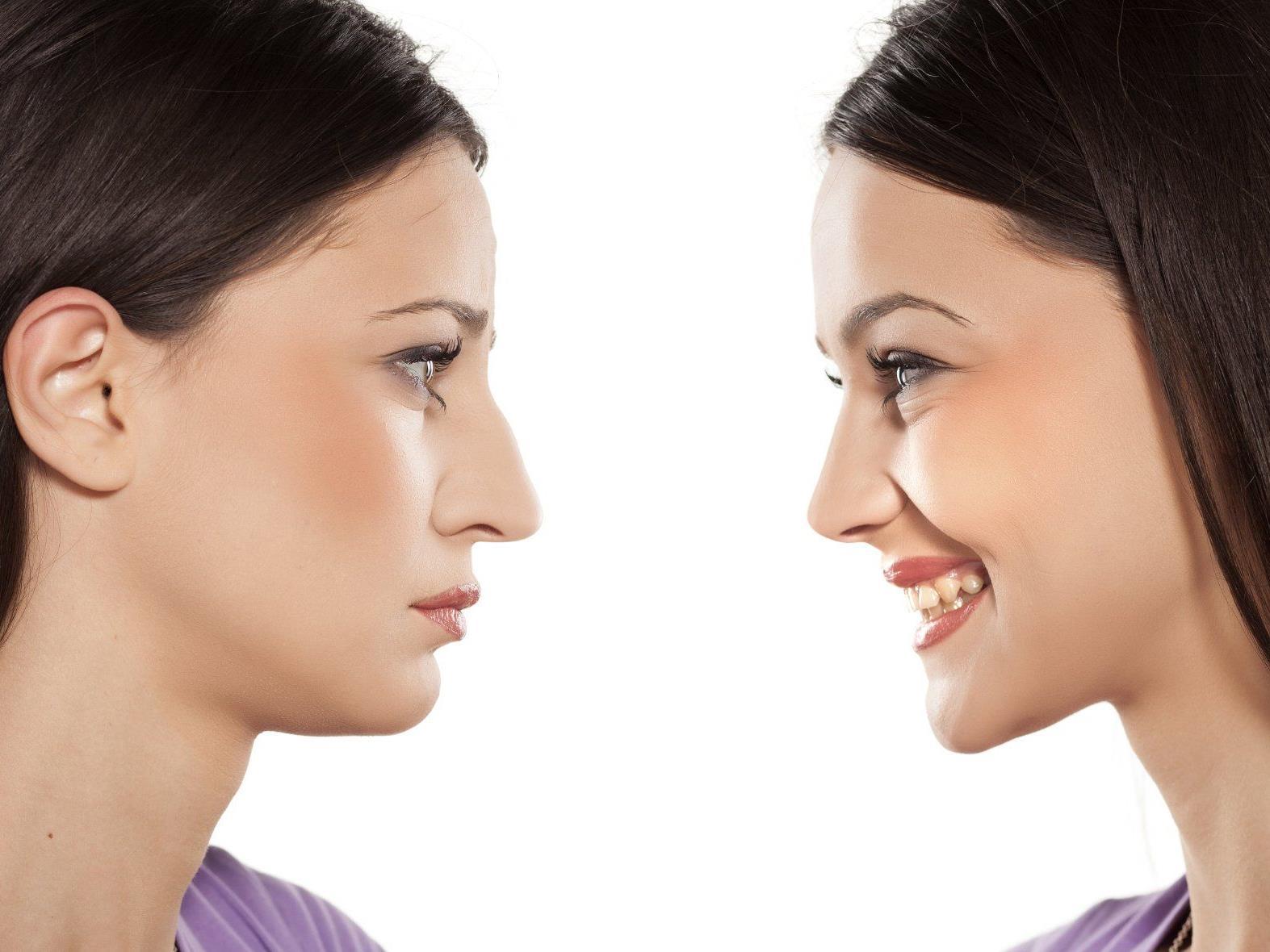 Nachher höckernase op vorher Nasenkorrektur HÖCKERNASE