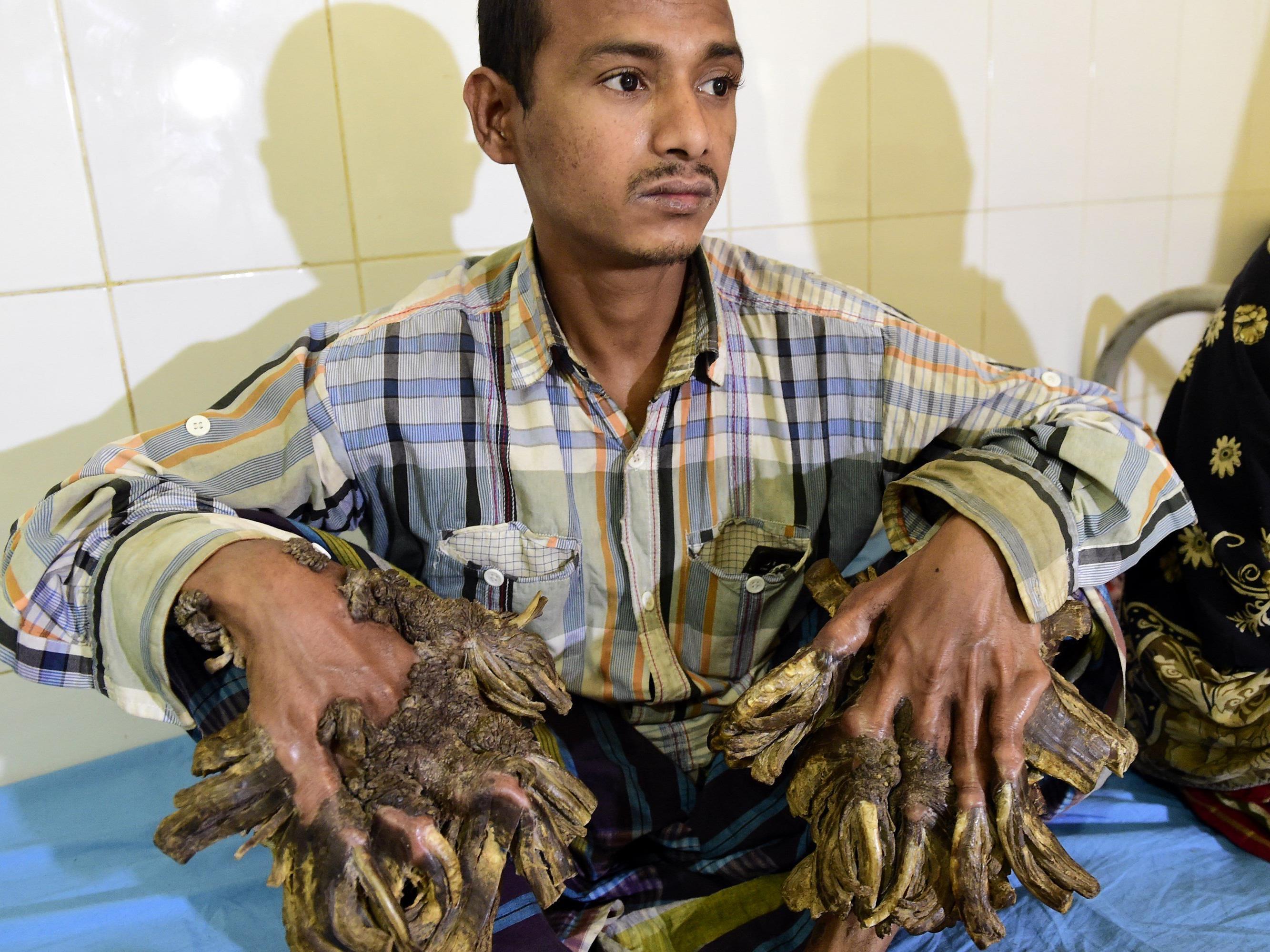 """Abul Bajandar leidet an der sogenannten """"Baum-Mann-Krankheit"""". Ein Ärzteteam will ihm nun helfen."""