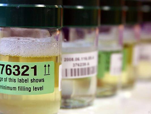 Täglich neue Enthüllungen aus den Doping-Labors